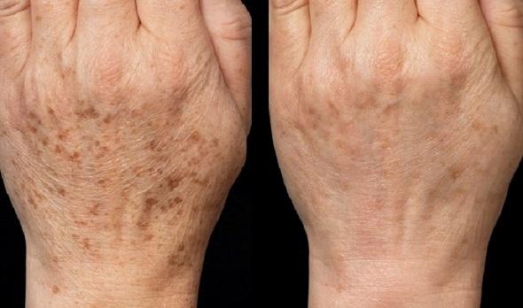 masca piele