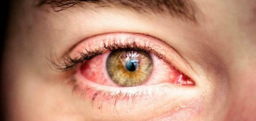 probleme ochi