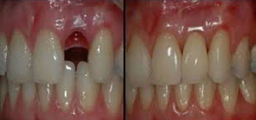 regenerare dinti