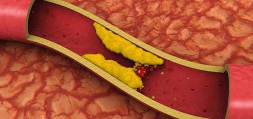 colesterol-bun-rau