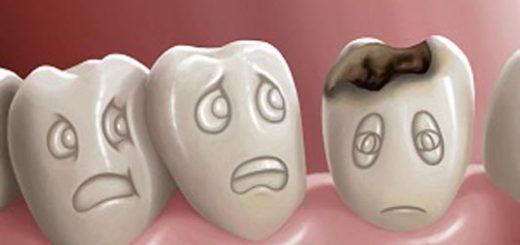 cum-sa-tratezi-cariile-dentare-cu-cateva-remedii-naturale