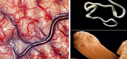 Atentie-Acest-aliment-te-predispune-la-paraziti-pe-creier-770x470