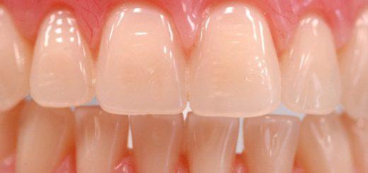 implanturi-dentare-inlocuite-cu-bio-din-i-crea-i-din-celule-stem-29782-1