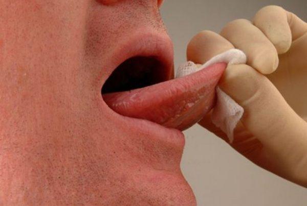 taiatul sub limba