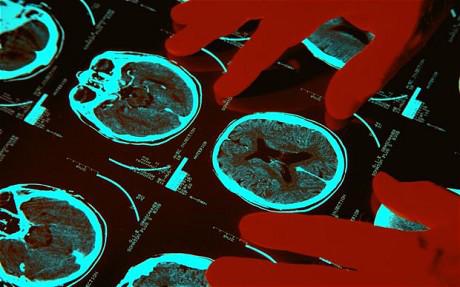 creier-scanat
