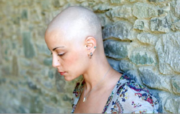 bald-woman1